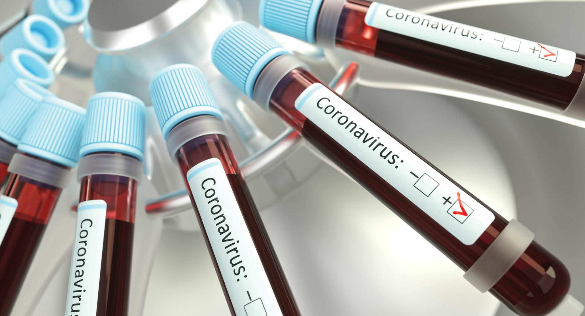 Coronavirus turns up the heat on cybersecurity projects